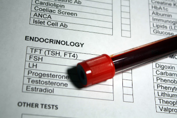 Testosterone Therapy Guidelines From the Endocrine Society