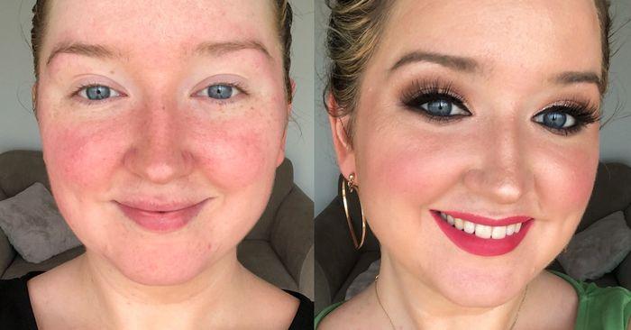 I Recommend These Products for Rosacea More Than Any Others